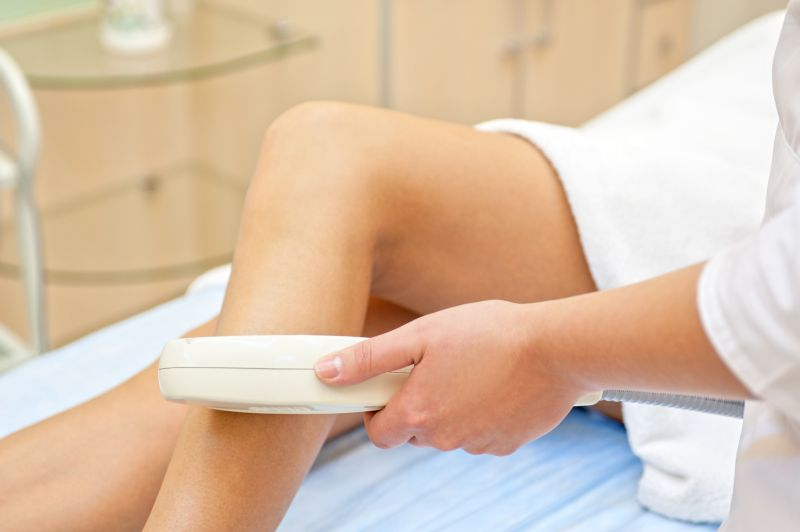 Sclerotherapy and Mini Phlebectomy, Effective and Painless Treatment